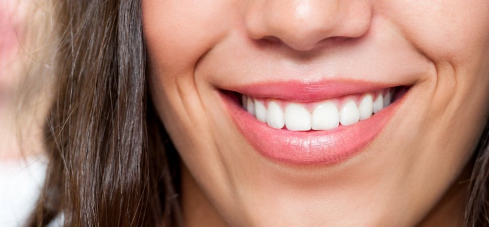 Smiling Teeth whitening
